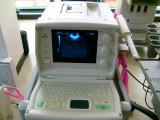 "УЗ сканер ""Medison"" SA 600"