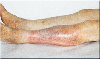 Лечение предстательной железы все о простатите
