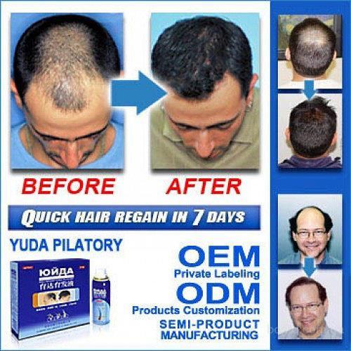 Финастерид облисение пересадка волос
