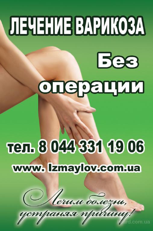 Лечение варикоза пенза